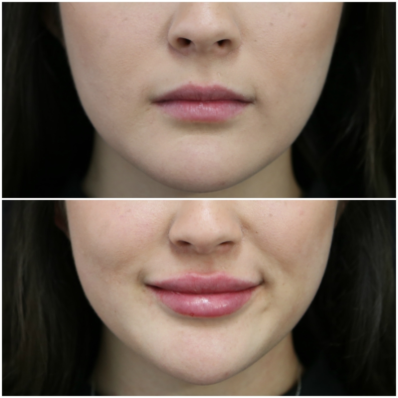 lip_augmentation_ba_24_web.jpg