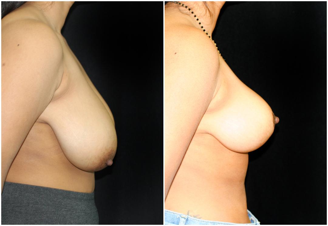 breast reduction_ba_7.jpg