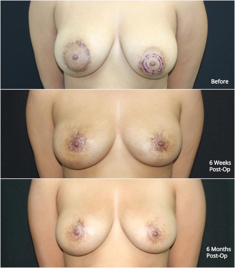 nipple_reduction_ba_1.jpg