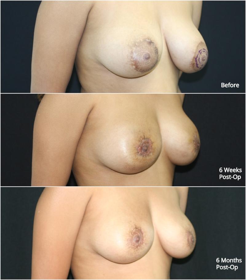 nipple_reduction_ba_2.jpg