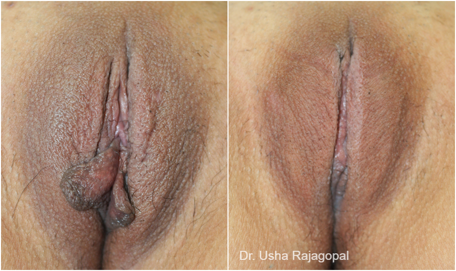 Labiaplasty Before and After