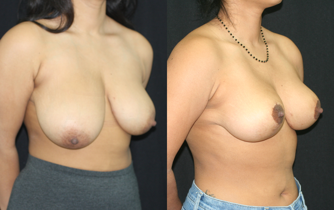 Breast Reduction by Dr. Usha Rajagopal