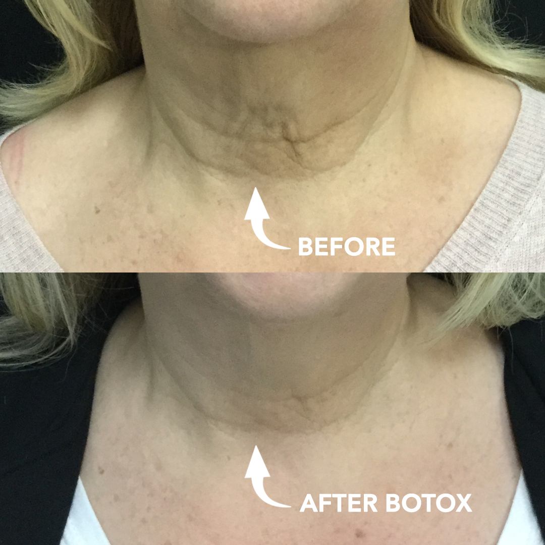 Botox Neck Lift Treatment for Neck Lines and Wrinkles