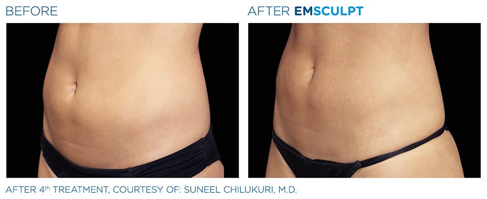 Emsculpt_PIC_Ba-card-female-abdomen-011_ENUS100.jpg