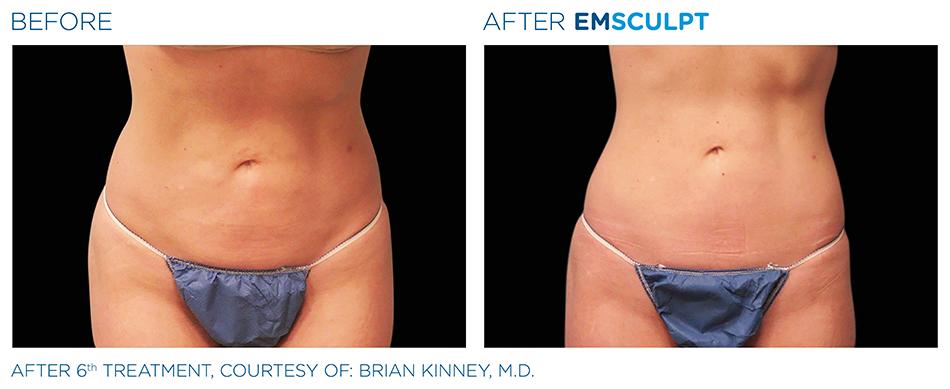 Emsculpt_PIC_Ba-card-female-abdomen-031_ENUS100.jpg