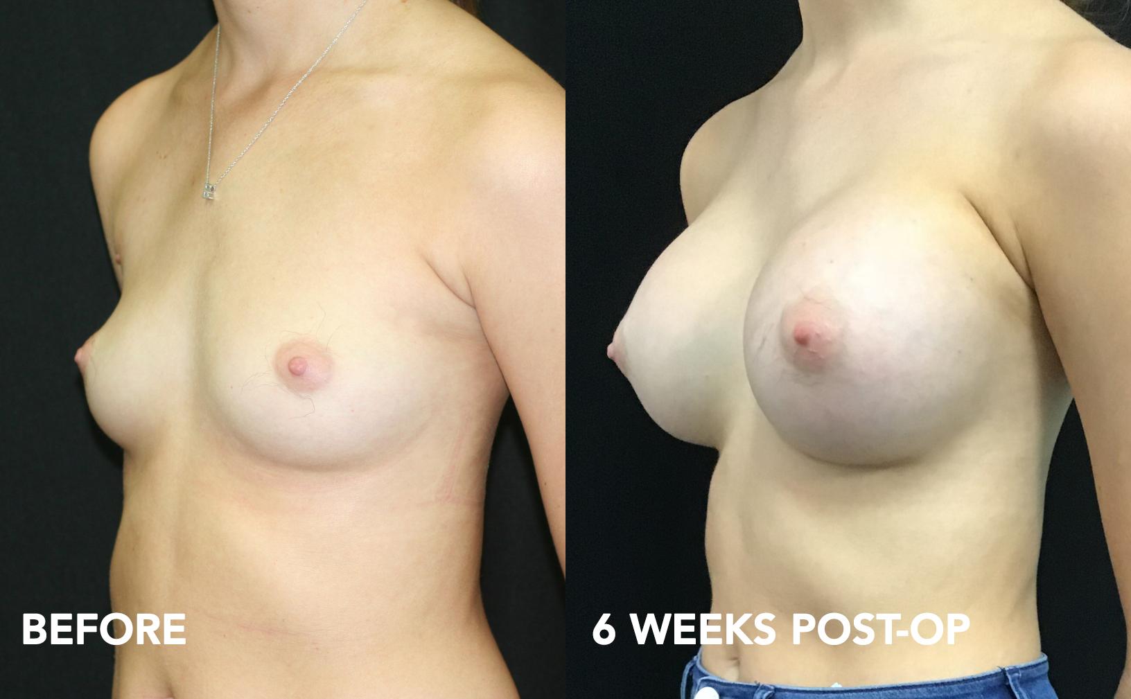 breast-aug_ba_30.jpg