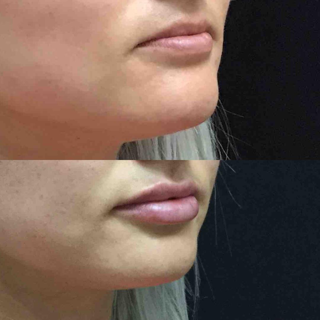 lip_augmentation_ba_66.jpg