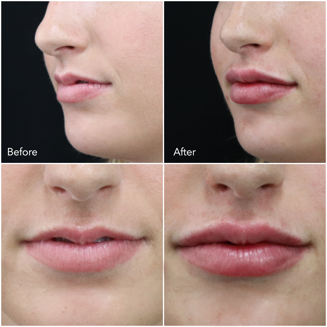 Lips by Nurse Lauren