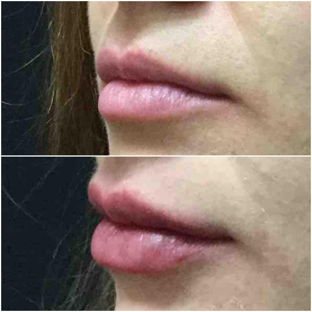 Juvederm Lip Injections San Francisco