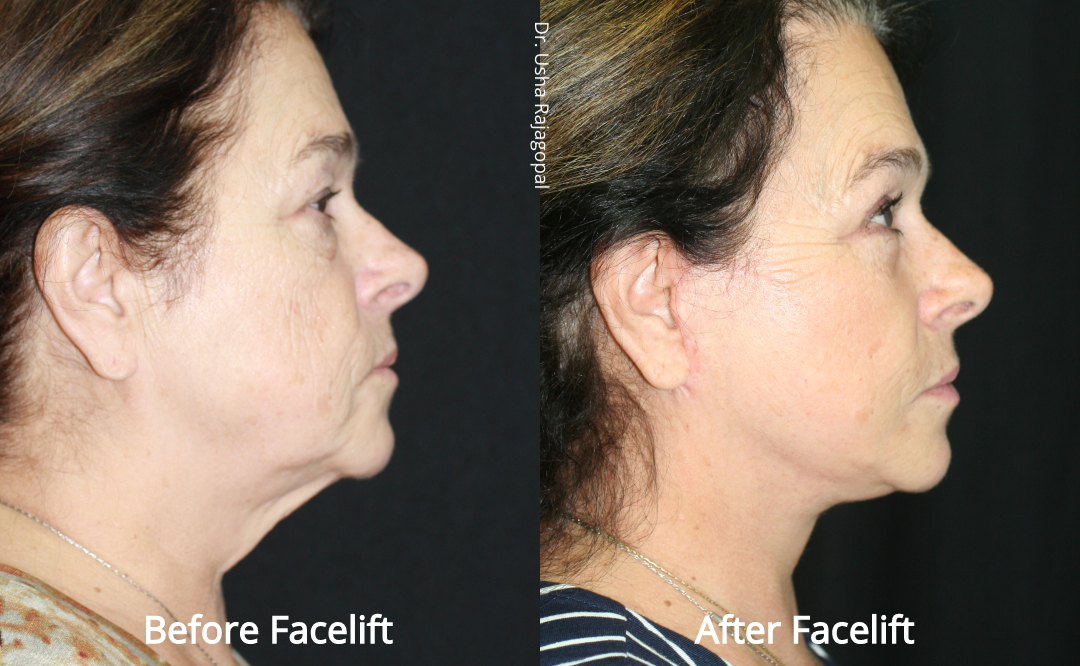 facelift_beforeafter_23.jpg
