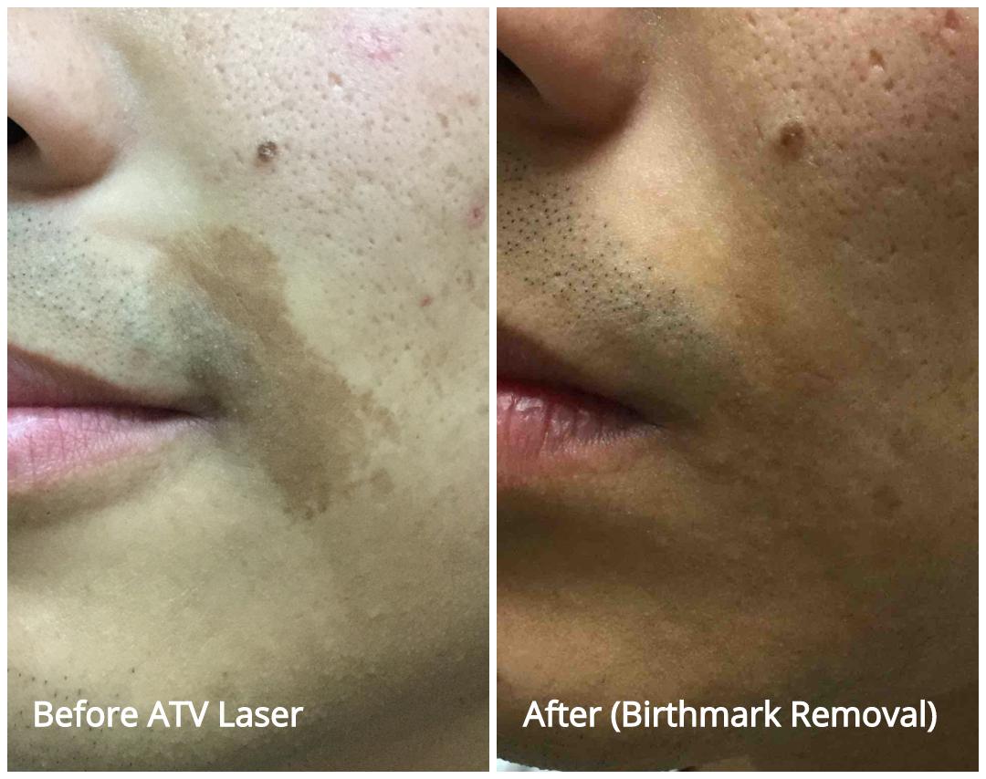 Birthmark Removal with ATV Laser