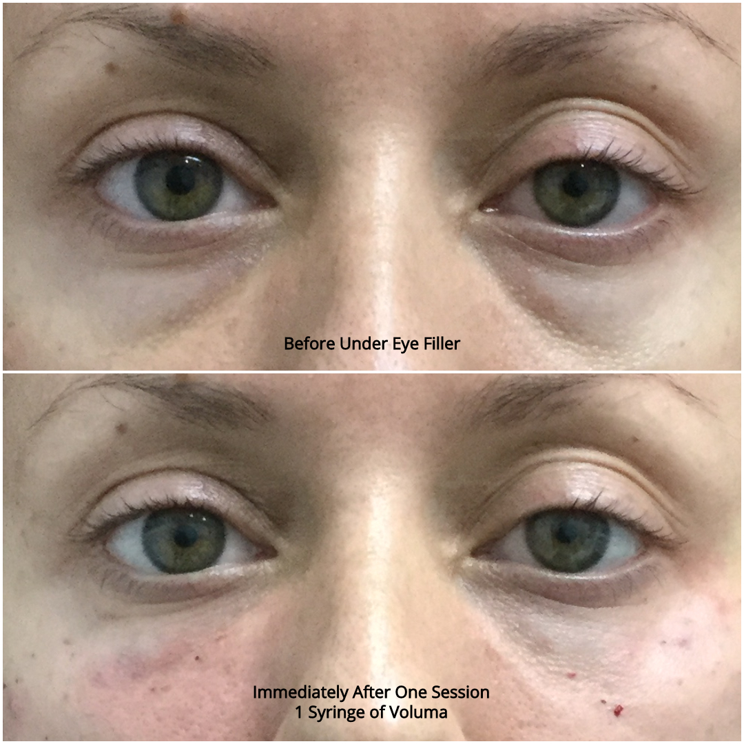 Under Eye Filler Before and After