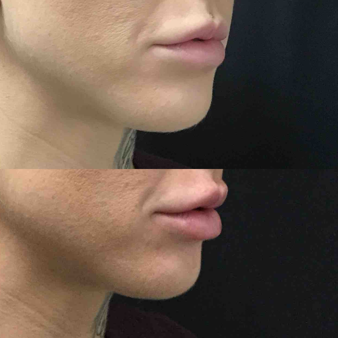 Lip Injections Before and After