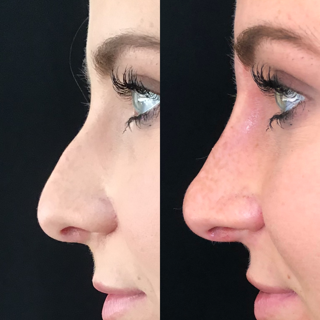 Non Surgical Rhinoplasty Nose Job Before and After