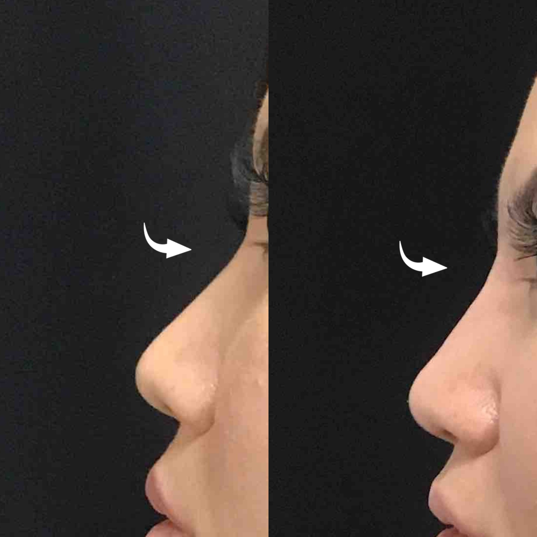 Non-Surgical Rhinoplasty Before and After