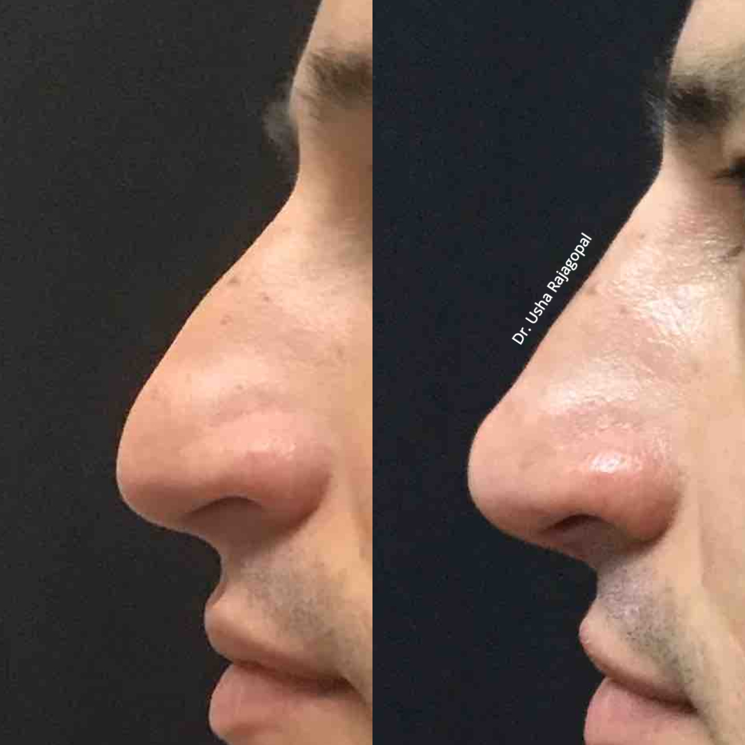 Male Non-Surgical Rhinoplasty (Nose Job)