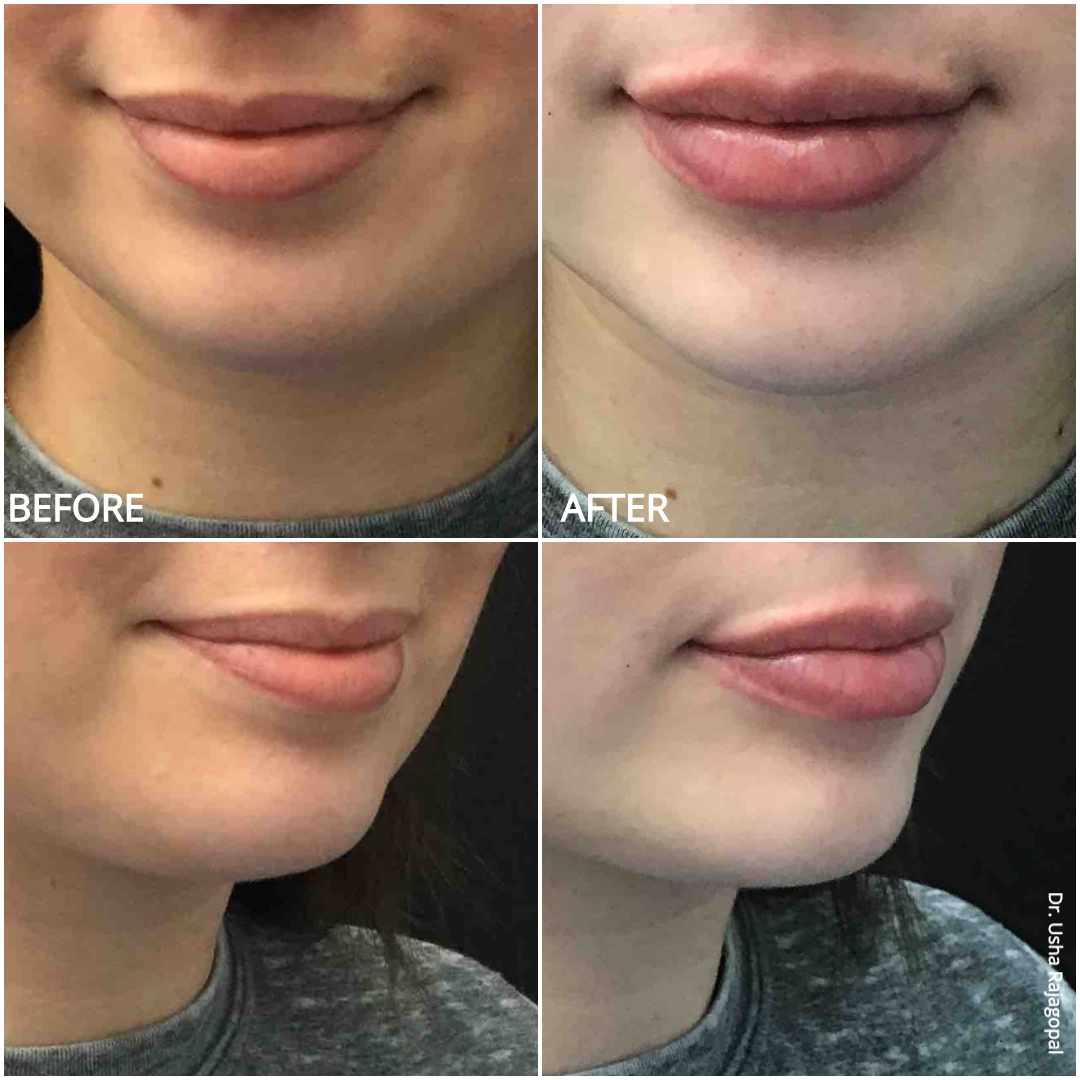 lip_augmentation_ba_96.jpg