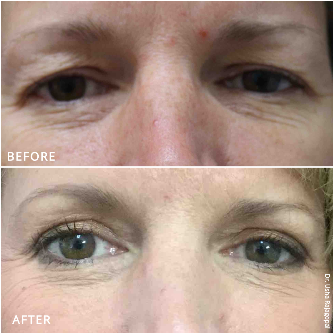 eyelid surgery_ba_2.jpg