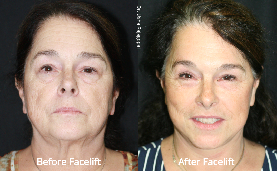 facelift_beforeafter_22.jpg