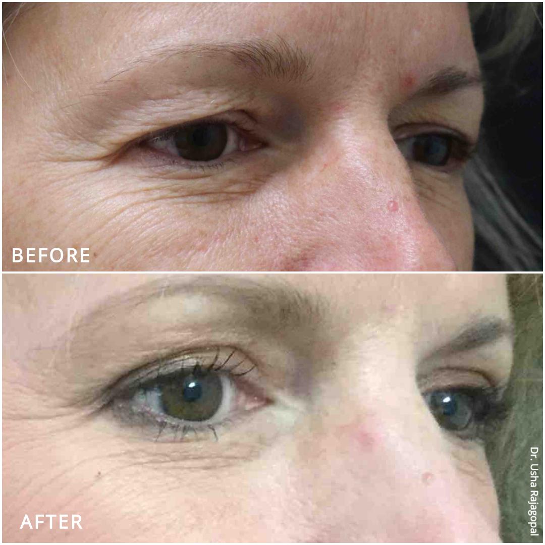 eyelid surgery_ba_3.jpg