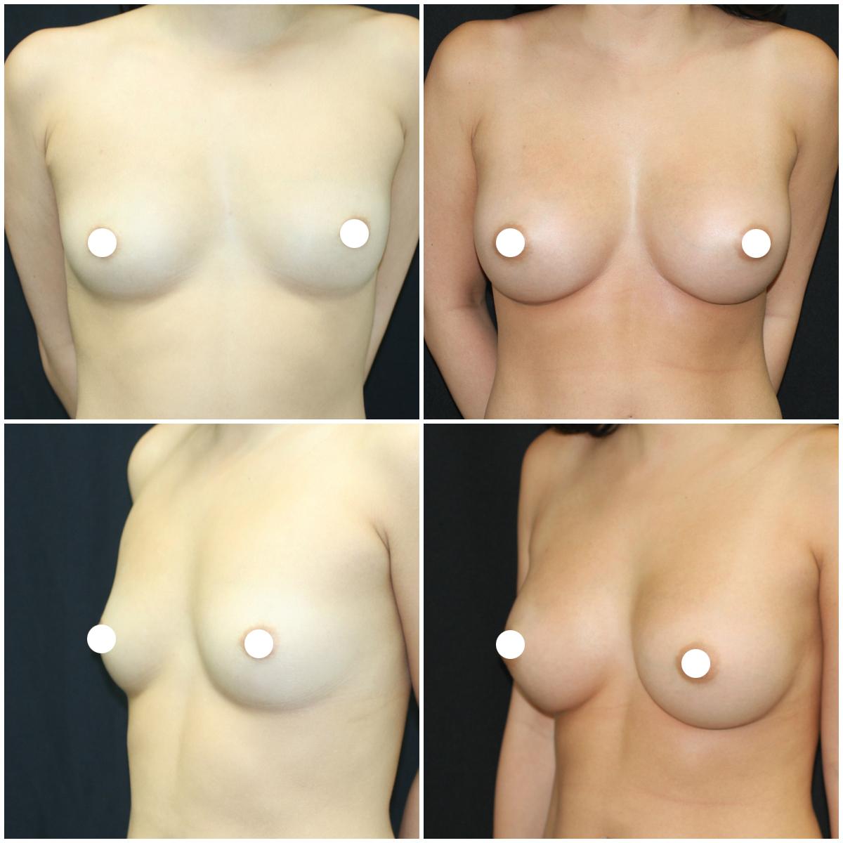 breast-aug_ba_25_IG_edited.jpg