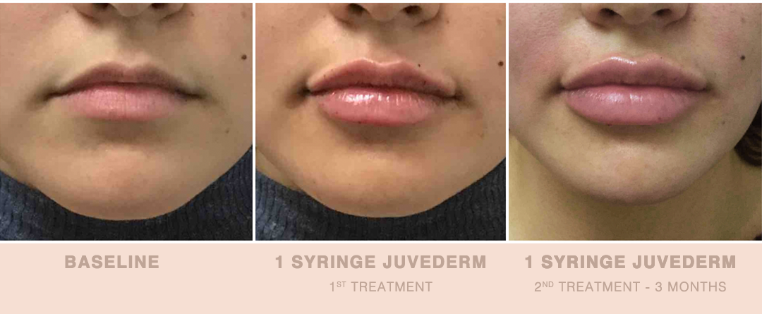 Bay Area Lip Augmentation: plump, organic and healthy lips | Usha