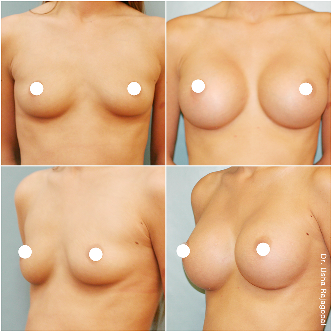 breast-aug_ba_23_IG2.png