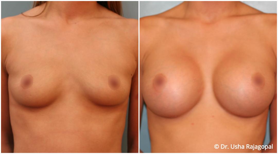 breast-aug-web-10.jpg