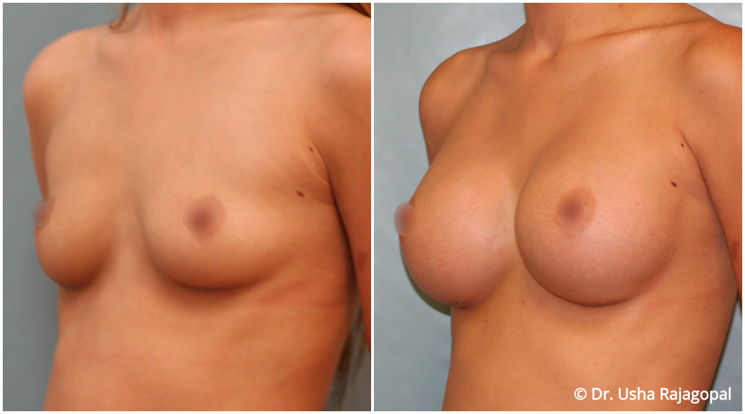 breast-aug-web-11.jpg