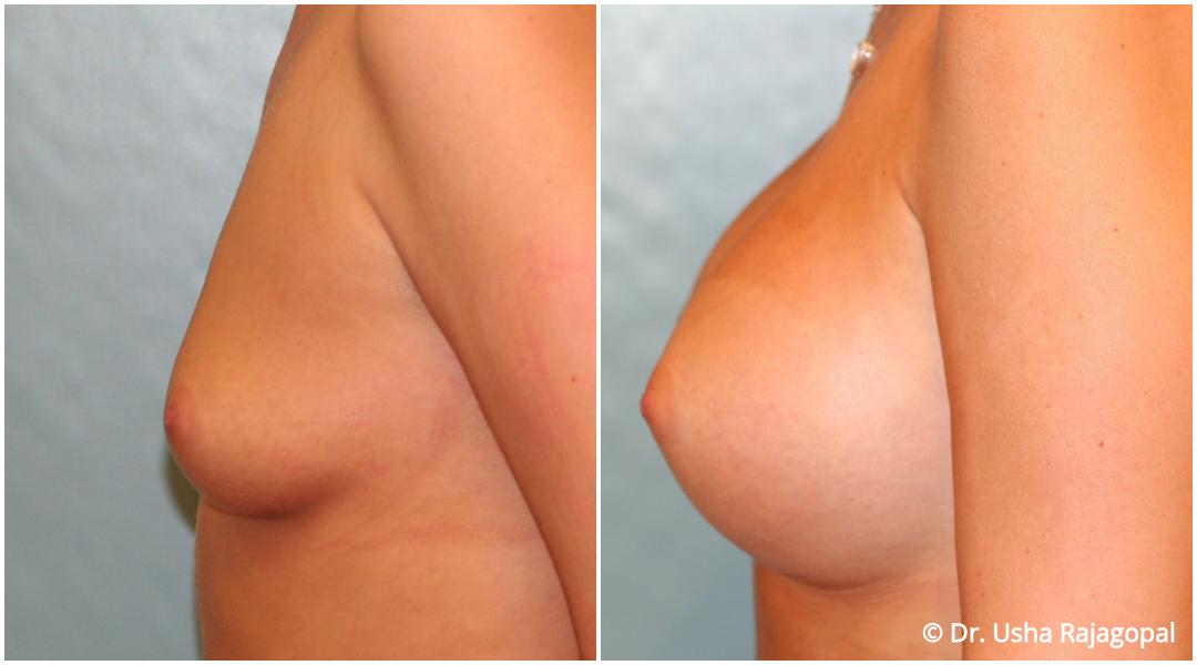 breast-aug-web-12.jpg