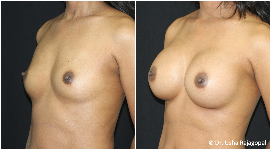 breast-aug-web-14.jpg