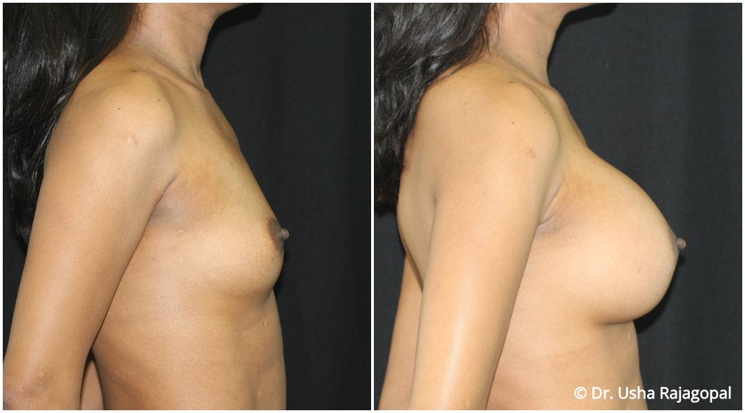 breast-aug-web-15.jpg