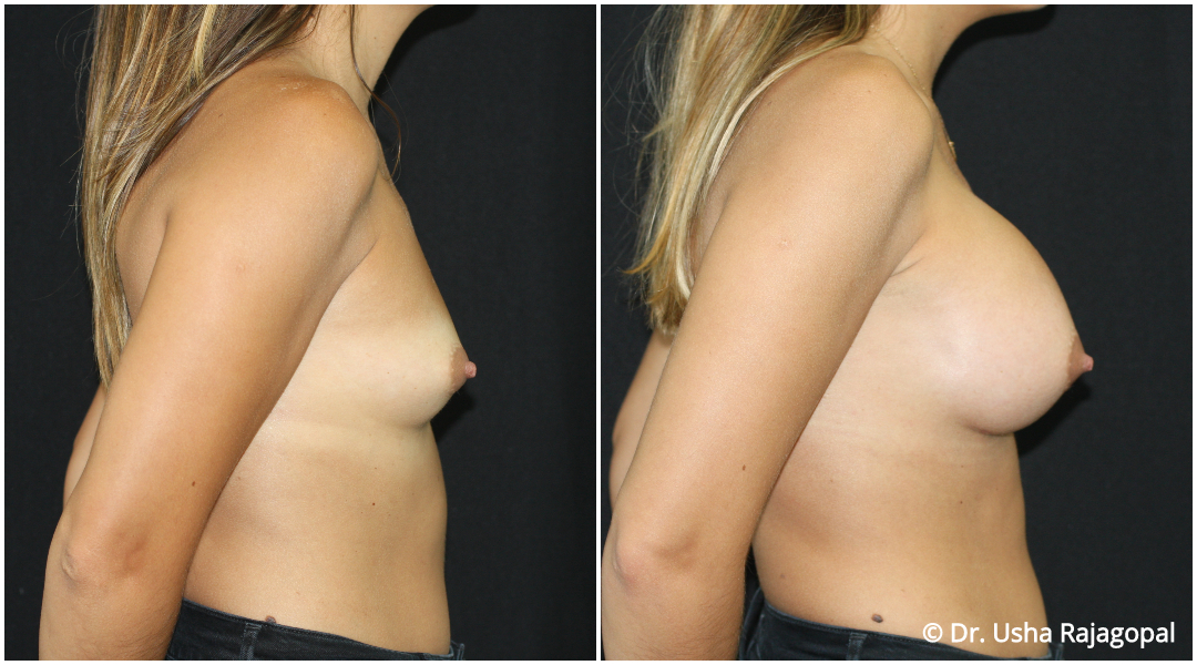 breast-aug-web-17.jpg