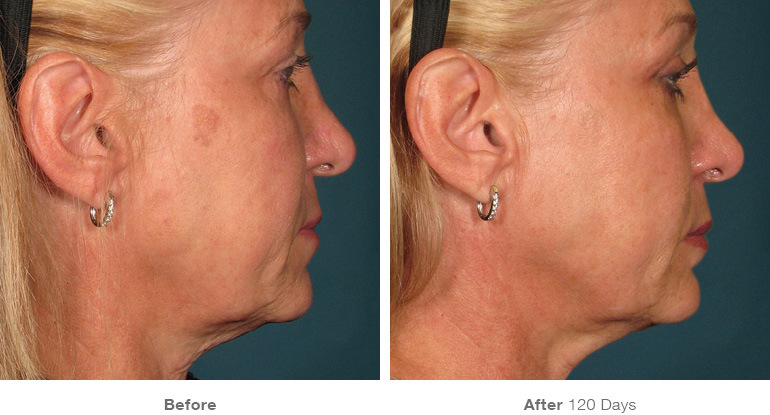 before_after_ultherapy_results_full-face5.jpg