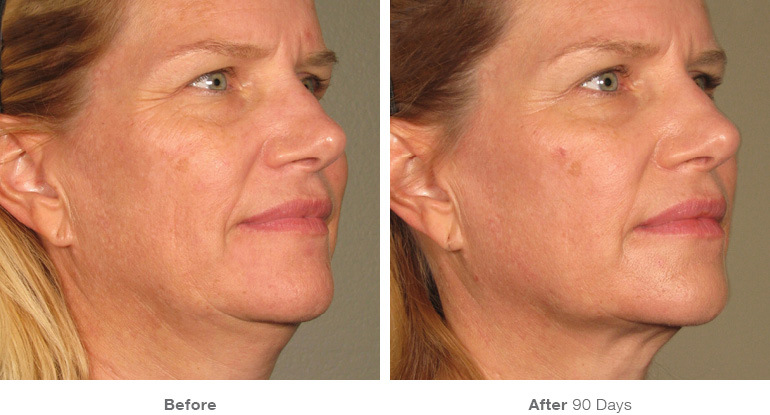 before_after_ultherapy_results_full-face21.jpg