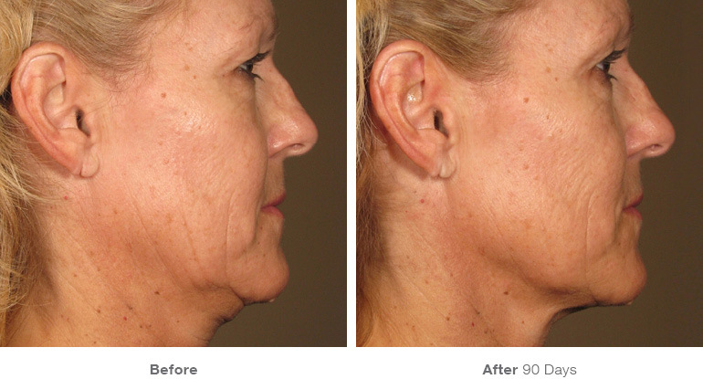 before_after_ultherapy_results_full-face24.jpg