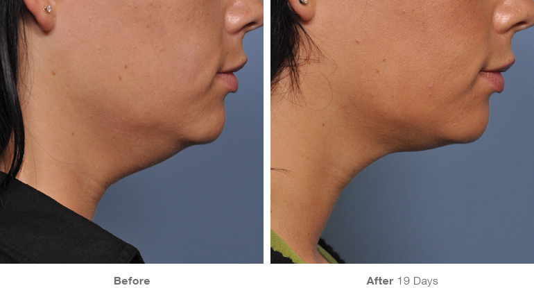 before_after_ultherapy_results_under-chin38.jpg