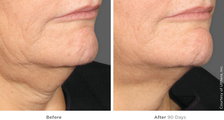 very_severe_laxity_submentum-and-neck_beforeafter90days.jpg