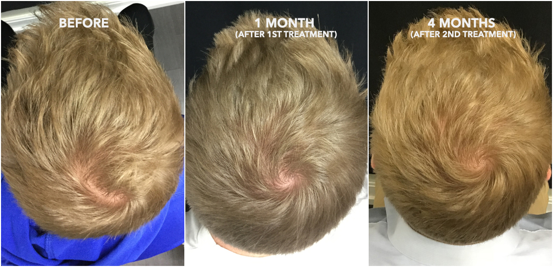 Hair Regrowth Therapy with ACell + PRP | San Francisco Bay Area