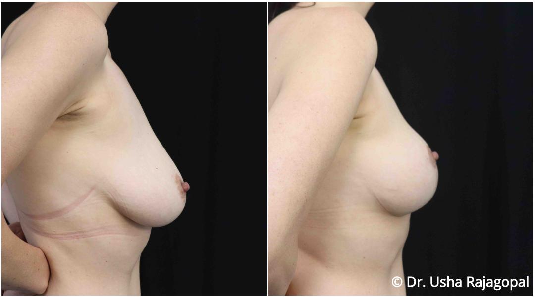 breastlift_ba_2.jpg