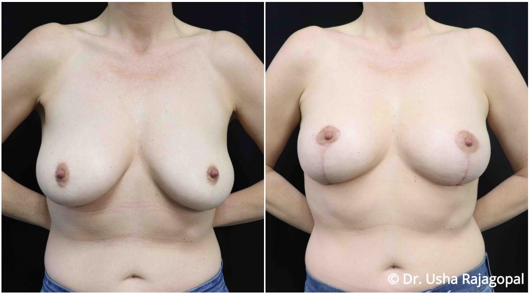 breastlift_ba_1.jpg