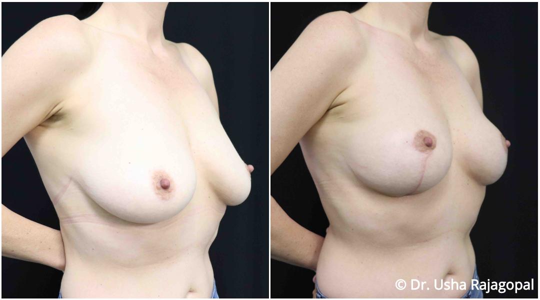 breastlift_ba_3.jpg