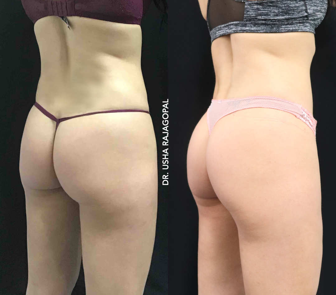 Sculptra Butt Lift and Emsculpt Before and After