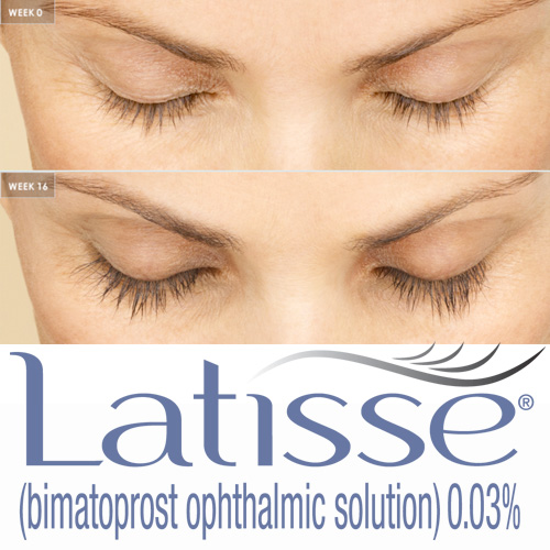 Latisse-product-1.jpg