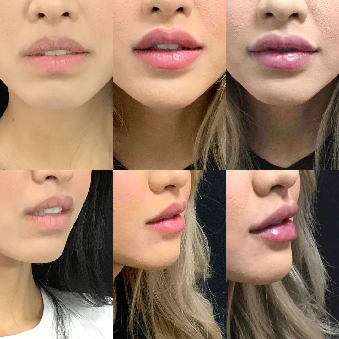 lip_augmentation_ba_100.jpg