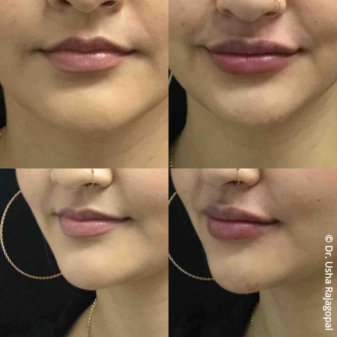 lip_augmentation_ba_98.jpg