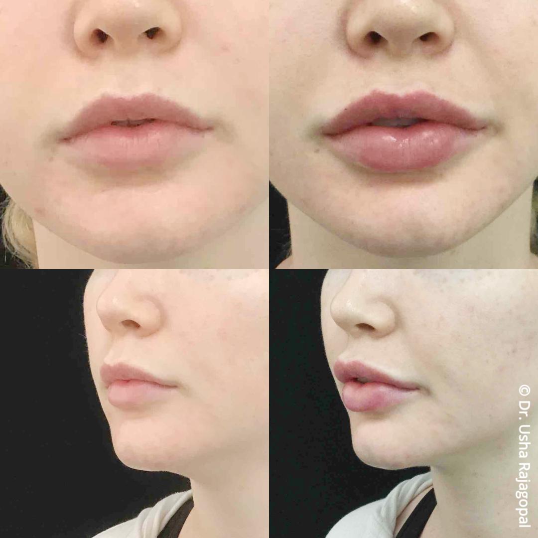 lip_augmentation_ba_114.jpg