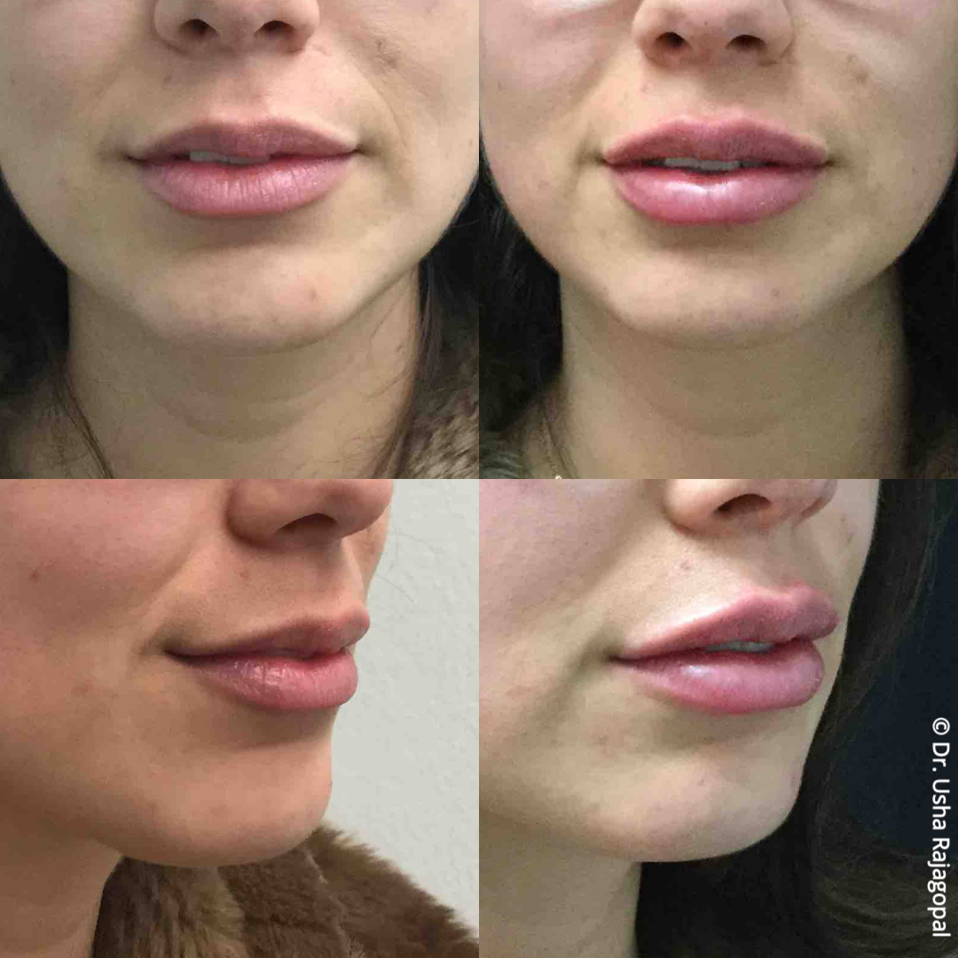 lip_augmentation_ba_111.jpg