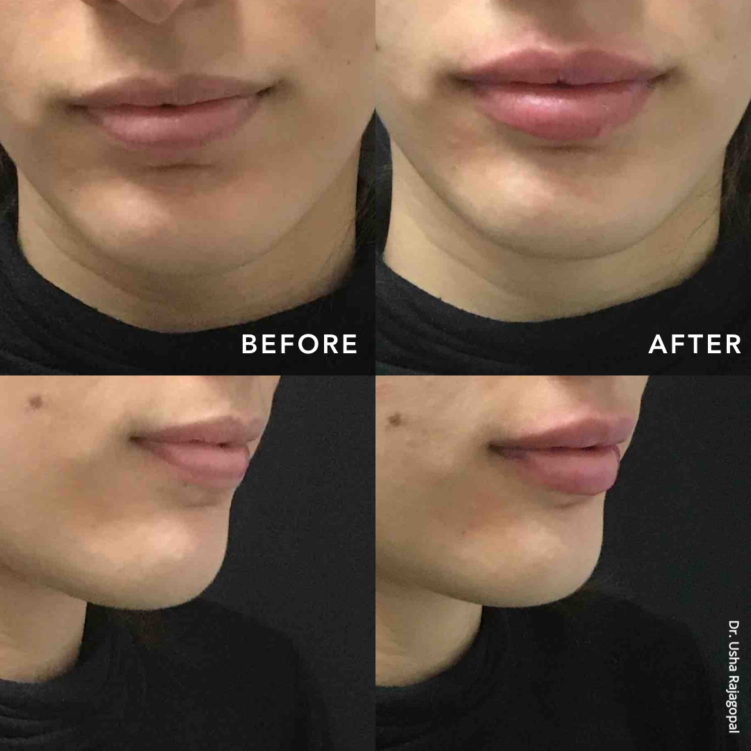 lip_augmentation_ba_102.jpg