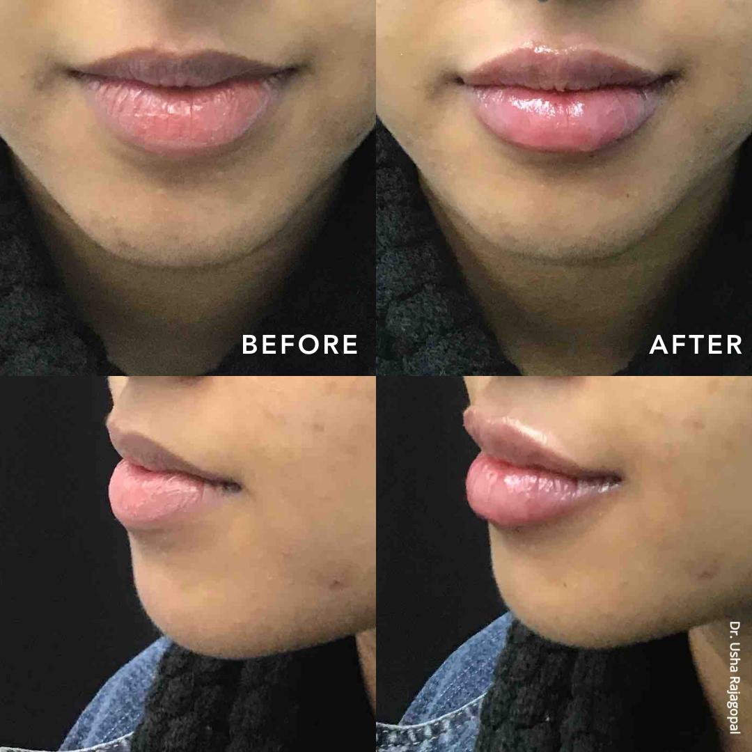 lip_augmentation_ba_101.jpg